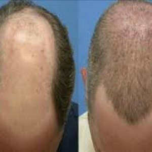 hair implantation